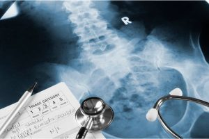 Pelvic Fractures in Traffic Accidents
