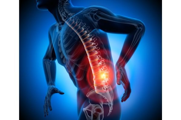 Vertebral Fractures: What Victims Should Expect