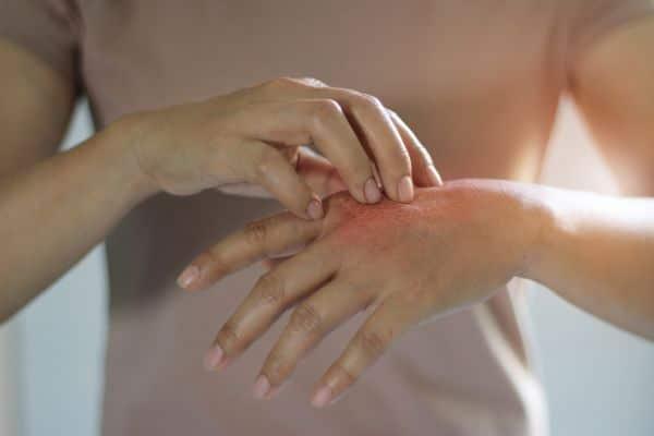 Degloving Injuries: Symptoms, Causes, Treatment